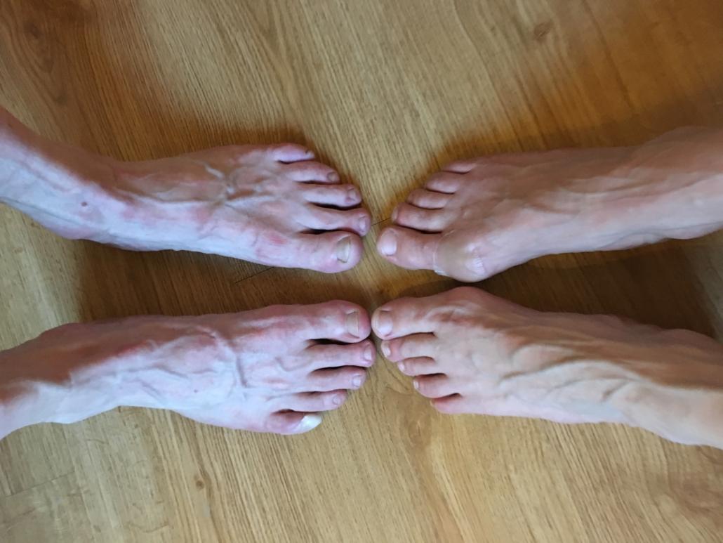 wewalk fødder